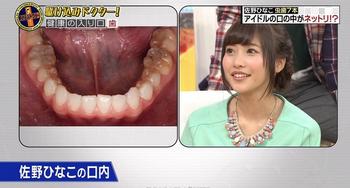 佐野ひなこ 歯.png
